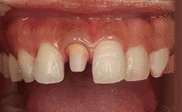 支台歯となる歯は過度な負担がかりやすくなります。