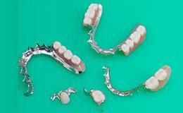 歯を失ってしまった場合で、ブリッジが使えない場合に使用します。