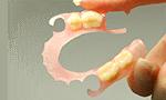 金属のバネを使わない目立たない入れ歯です。