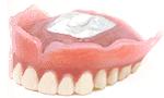 コンフォートは、硬い入れ歯の裏面を生体用シリコーンというクッションで覆う、全く新しい入れ歯の技術です。